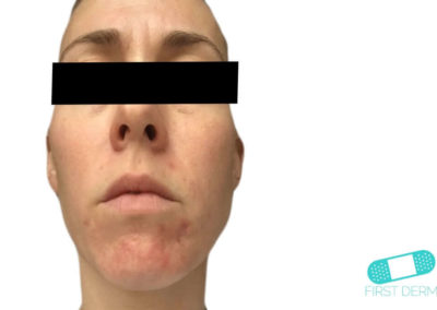 Dermatitis Perioral (04) rostro [ICD-10 L71.0]