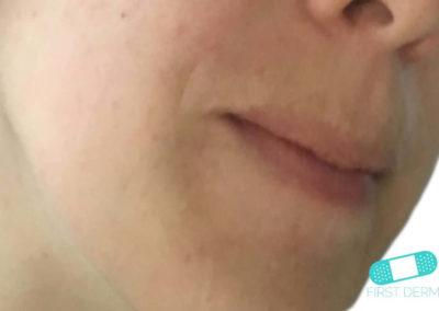 Dermatitis Perioral (08) rostro [ICD-10 L71.0]