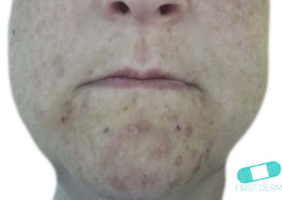 Dermatitis Perioral (11) mentón [ICD-10 L71.0]