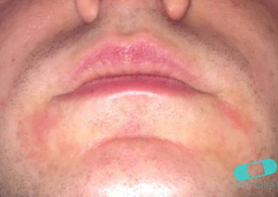 Dermatitis Perioral (17) labios [ICD-10 L71.0]