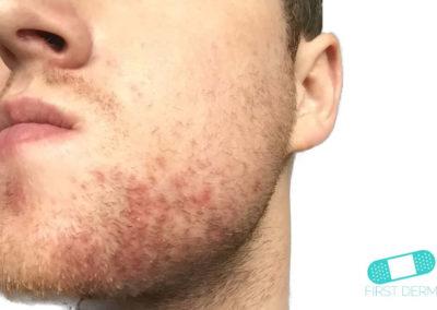 Dermatitis Seborreica (Eccema Caspa) (01) mejilla mentón [ICD-10 L21.9]