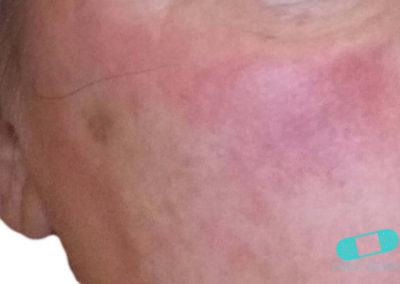 Dermatitis de Contacto (12) mejilla [ICD-10 L25.9]