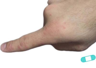 Dermatitis de Contacto (13) dedo mano [ICD-10 L25.9]