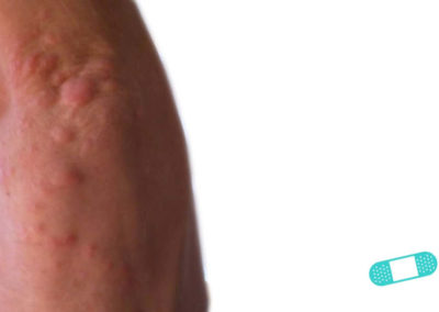 Dermatitis de Contacto (16) mano [ICD-10 L25.9]