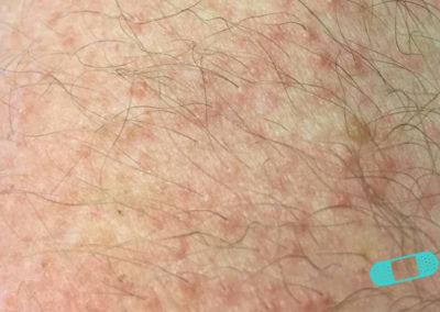 Dermatitis de Contacto (18) piel [ICD-10 L25.9]