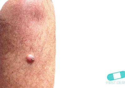 Dermatofibrom (01) arm [ICD-10 D23.9]