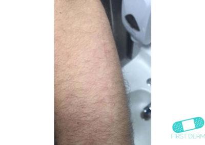 Dermografism - skrivurtikaria (03) arm [ICD-10 L50.3]