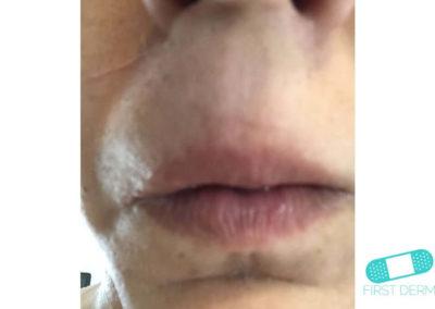 Dermografismo (Urticaria Dermográfica) (06) boca [ICD-10 L50.3]