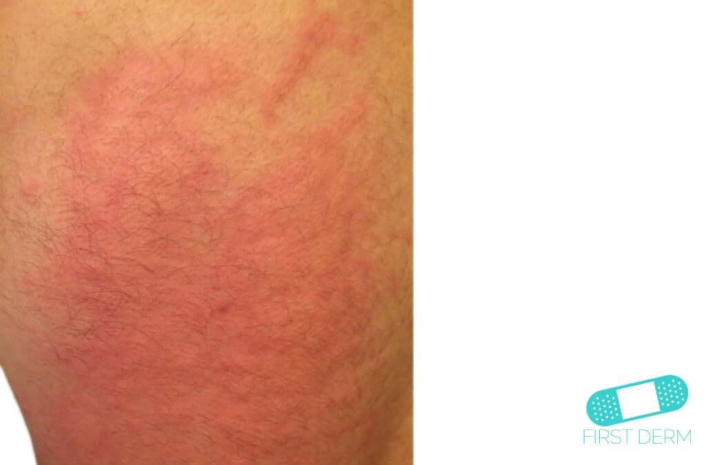 Dermographism (Dermatographic Urticaria) (01) skin [ICD-10 L50.3]