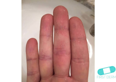 Dyshidrotic eczema (dyshidrosis) (04) finger hand [ICD-10 L30.1]