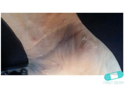 Dyshidrotic eczema (dyshidrosis) (05) wrist [ICD-10 L30.1]
