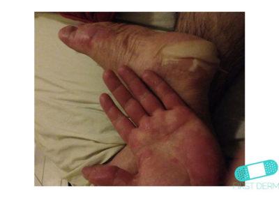 Dyshidrotic eczema (dyshidrosis) (07) foot hand [ICD-10 L30.1]