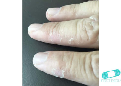 Dyshidrotic eczema (dyshidrosis) (08) finger hand [ICD-10 L30.1]
