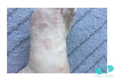 Dyshidrotic eczema (dyshidrosis) (10) foot [ICD-10 L30.1]