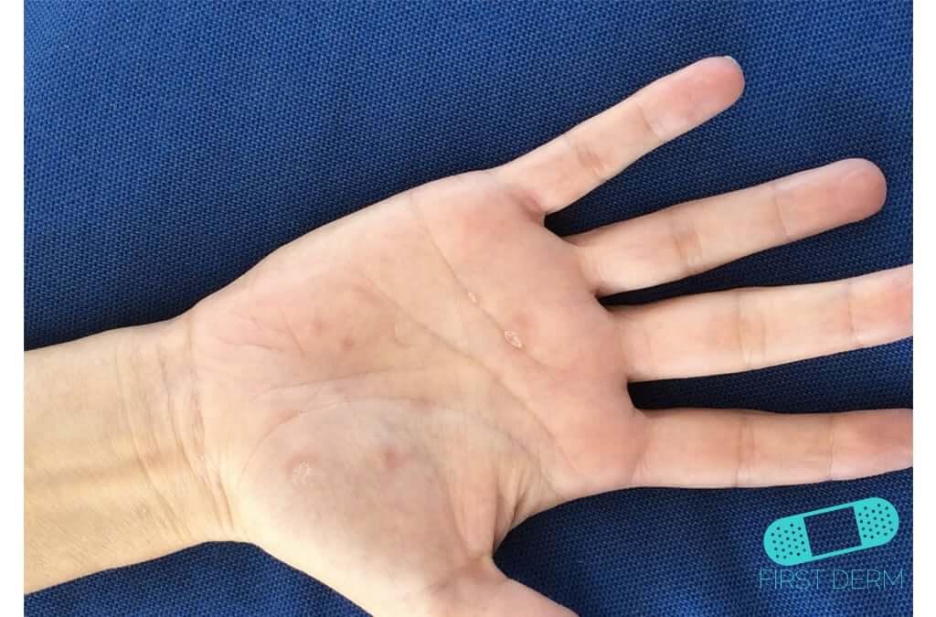 Dyshidrotic eczema (dyshidrosis) (11) hand [ICD-10 L30.1]