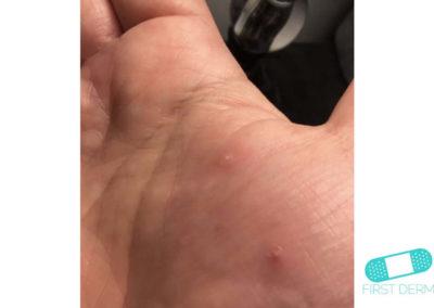Dyshidrotic eczema (dyshidrosis) (14) hand [ICD-10 L30.1]