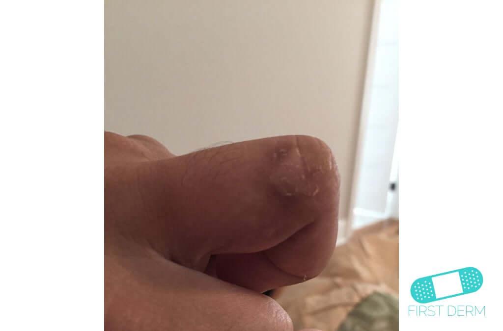 Dyshidrotic eczema (dyshidrosis) (15) finger hand [ICD-10 L30.1]
