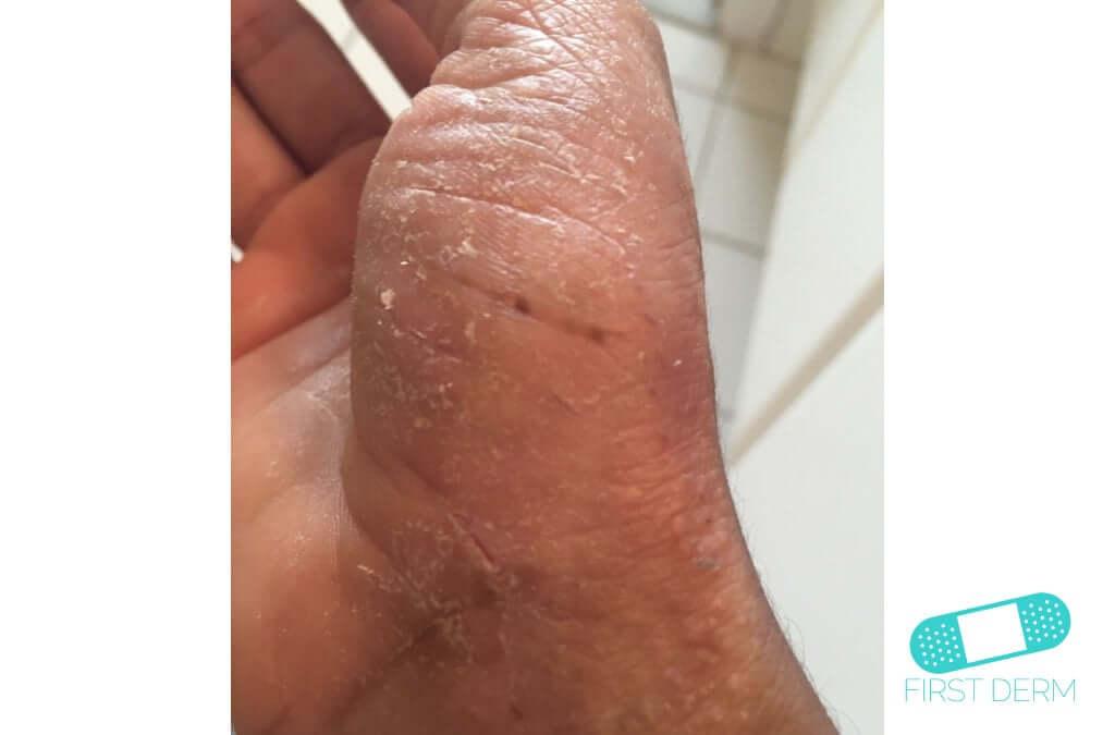 Dyshidrotic eczema (dyshidrosis) (16) hand [ICD-10 L30.1]