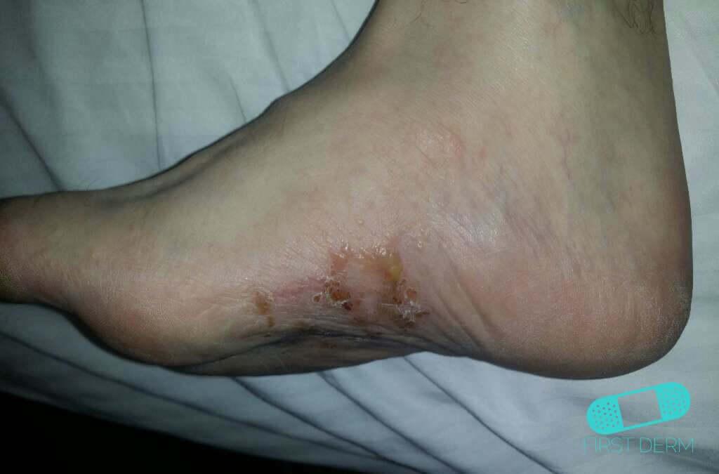 Dyshidrotic eczema (dyshidrosis) (17) foot [ICD-10 L30.1]