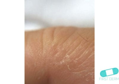 Dyshidrotic eczema (dyshidrosis) (19) skin [ICD-10 L30.1]