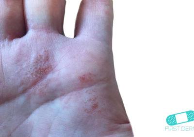 Dyshidrotiskt eksem (01) hand [ICD-10 L30.1]