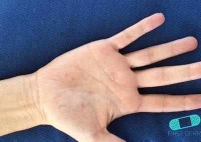 Dyshidrotiskt eksem (11) hand [ICD-10 L30.1]