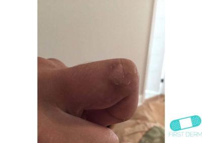 Dyshidrotiskt eksem (15) finger hand [ICD-10 L30.1]