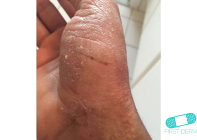 Dyshidrotiskt eksem (16) hand [ICD-10 L30.1]