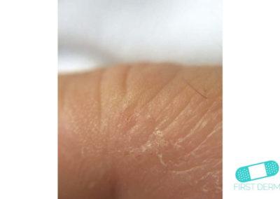 Dyshidrotiskt eksem (19) hud [ICD-10 L30.1]