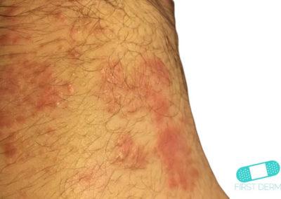 Eccema Atópico (04) piel [ICD-10 L20.9]