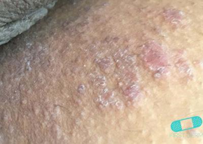 Eccema Atópico (05) piel [ICD-10 L20.9]