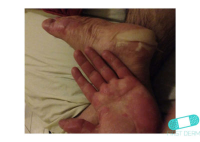 Eccema Dishidrótico (Dishidrosis) (07) pie mano [ICD-10 L30.1]