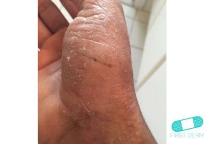 Eccema Dishidrótico (Dishidrosis) (16) mano [ICD-10 L30.1]