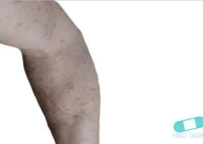 Eccema Numular (Dermatitis Discoide) (01) brazo [ICD-10 L30.0]