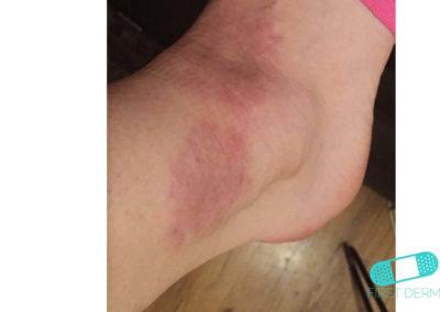 Eccema Numular (Dermatitis Discoide) (08) pie [ICD-10 L30.0]