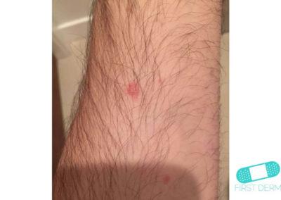 Eccema Numular (Dermatitis Discoide) (12) brazo [ICD-10 L30.0]
