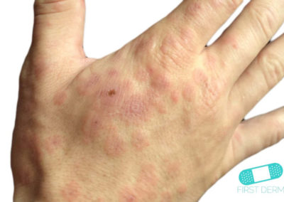 Erythema multiforme (05) right hand [ICD-10 L51.9]