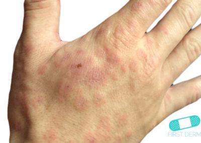 Erythema multiforme (05) hand [ICD-10 L51.9]