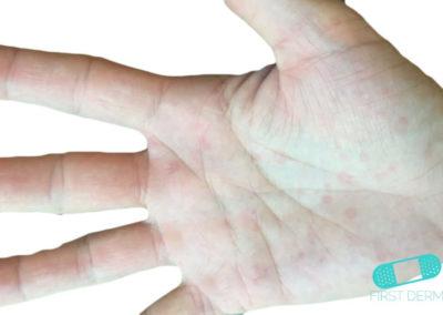 Erythema multiforme (16) hand [ICD-10 L51.9]