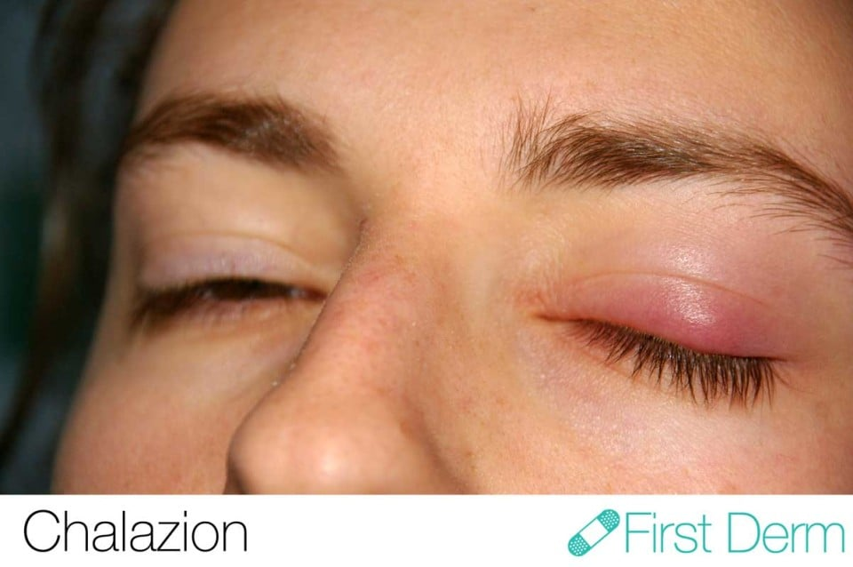 Chalazion (meibomsk cysta) (02) vänster öga [ICD-10 H00.19]