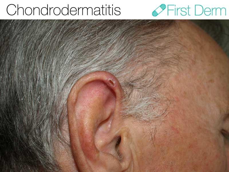 Chondrodermatitis-Nodularis-Chronica-Helicis-ICD-10-H61