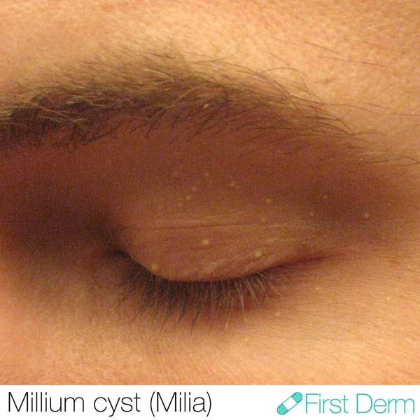 Milia-Milium-Cyst-ICD-10-L72