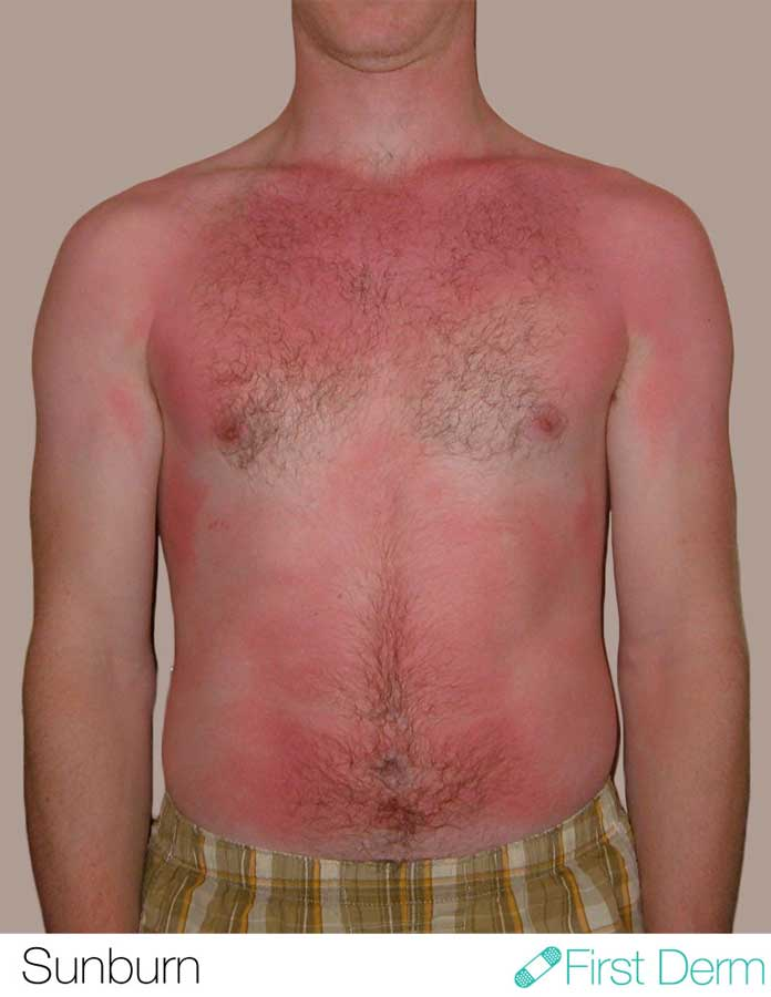 Skin cancer pictures sunburn ICD-10-L55