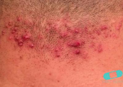 Foliculitis (comezón del barbero) (03) piel [ICD-10 L73.9]
