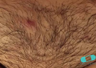 Foliculitis (comezón del barbero) (09) piel [ICD-10 L73.9]