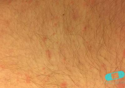 Foliculitis (comezón del barbero) (10) piel [ICD-10 L73.9]