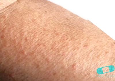 Foliculitis (comezón del barbero) (12) piel [ICD-10 L73.9]