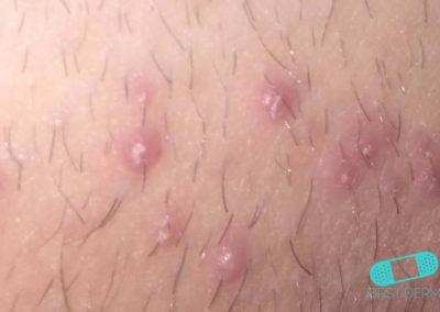 Foliculitis (comezón del barbero) (16) piel [ICD-10 L73.9]