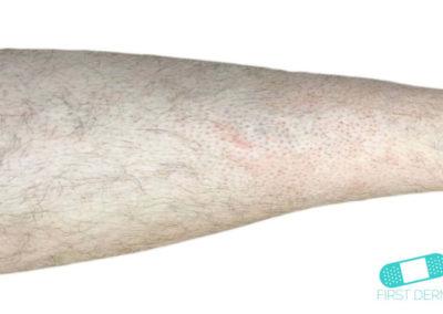 Foliculitis (comezón del barbero) (18) brazo [ICD-10 L73.9]