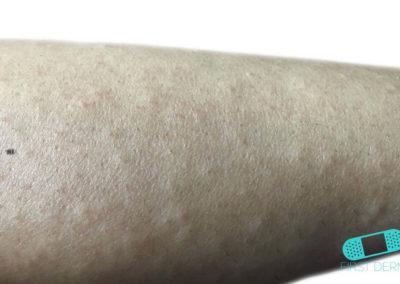 Foliculitis (comezón del barbero) (21) brazo [ICD-10 L73.9]